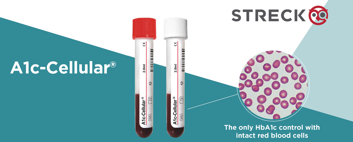 streck urinalysis controls